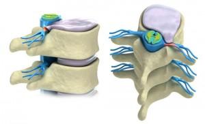Diskbråck-diskbuktning-ischias-ryggskott-ryggont